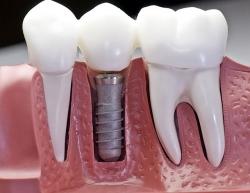 Профессиональная имплантация зубов с помощью лазера